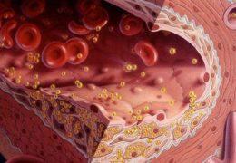 Ai là người có nguy cơ cao mắc bệnh mỡ máu cao?