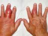 Sưng đỏ đau buốt khớp là dấu hiệu bệnh gút
