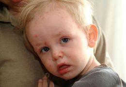 Dấu hiệu nhận biết bệnh rôm sảy ở trẻ bạn cần lưu ý