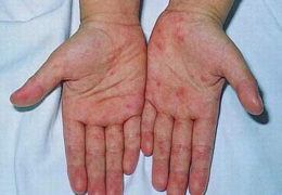 Bệnh ghẻ, nguyên nhân và cách điều trị như thế nào?