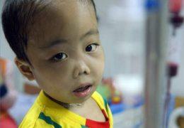 Bệnh thalassemia ở trẻ em, nguyên nhân và triệu chứng