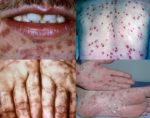 Những điều cần biết về bệnh giang mai ở nam giới