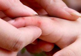 Những điều cần biết về bệnh tay chân miệng ở trẻ
