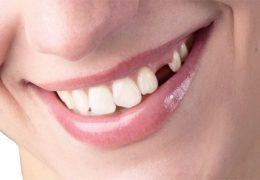 Những điều cần biết về tiêu xương chân răng