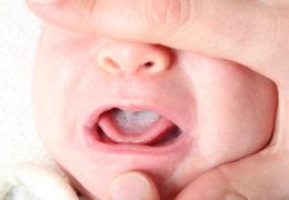 Nguyên nhân, dấu hiệu bệnh đẹn ở trẻ bạn cần nắm rõ