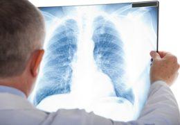 Những căn bệnh nguy hiểm về phổi bạn nên biết
