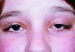 Nguyên nhân và cách điều trị bệnh sa mắt