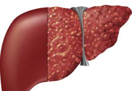 Cây dứa dại chữa xơ gan và những bài thuốc ứng dụng