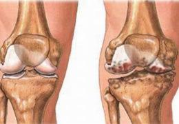 Cây lá lốt chữa bệnh khớp: Phương pháp nào được áp dụng?