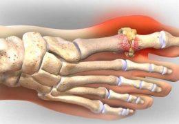 Cây nở ngày đất chữa bệnh gout