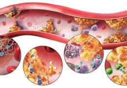 Làm thế nào để ngăn ngừa và điều trị rối loạn lipid máu?