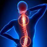 Gai cột sống: Nguyên nhân, triệu chứng, chẩn đoán và điều trị