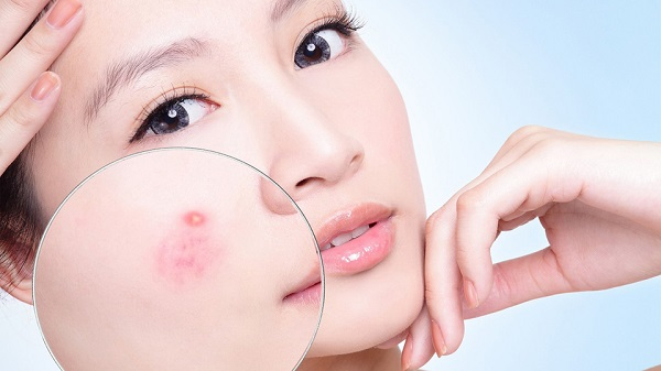 Tác dụng của Omega 3 với làn da