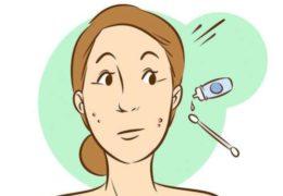 5 mẹo trị mụn hiệu quả chỉ sau 1 đêm