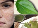 4 cách trị nám da với lá trầu không siêu hiệu quả