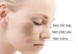 Điểm danh 5 cách trị nám da bằng chanh đơn giản và hiệu quả