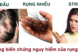 Cách trị rụng tóc bằng dân gian có thể áp dụng tại nhà
