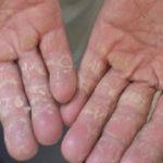 3 Mẹo dân gian trị nấm da tay dứt điểm ngay tại nhà - BẠN CẦN THAM KHẢO