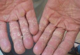 3 Mẹo dân gian trị nấm da tay dứt điểm ngay tại nhà – BẠN CẦN THAM KHẢO