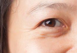 4 dấu hiệu lão hóa da sớm mà chị em cần lưu ý